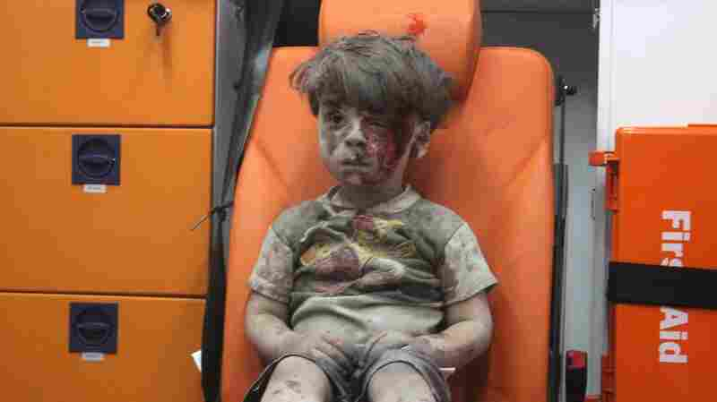 The Little Boy In Aleppo: Can One Photo End A War?