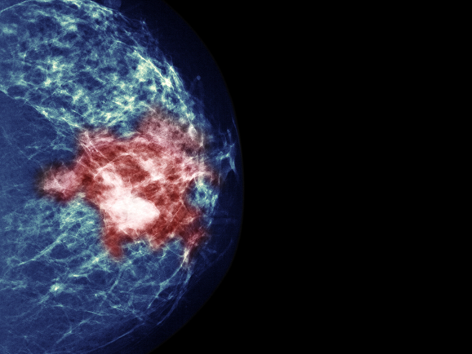 By testing tumors, researchers hoped to identify women who could avoid chemotherapy without increasing their risk of a cancer recurrence. (Voisin/Phanie/Science Source)
