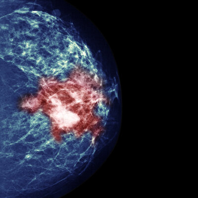 Study Of Breast Cancer Treatment Reveals Paradox Of Precision Medicine