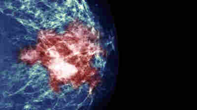 Study Of Breast Cancer Treatment Reveals Paradox Of Precision Medicine