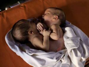 This photo shows conjoined twins born in Syria on July 23, waiting for life-saving surgery. Arrangements weren't made in time and the twins have died.