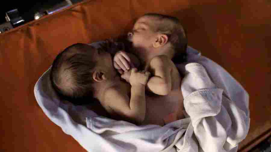 Syrian Conjoined Twins Die While Waiting For Lifesaving Surgery