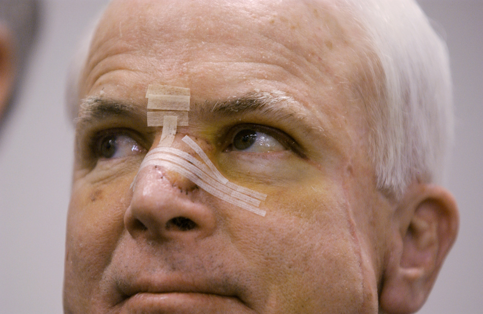 Former presidential candidate John McCain in 2002, with a bandaged nose after being treated for skin cancer. As a candidate, McCain was open about his health and allowed reporters to review more than 1,000 pages of his records over three hours. (Stephen J. Boitano/AP)
