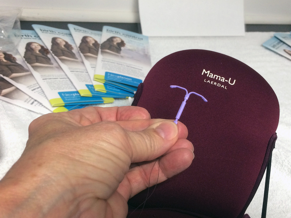 A number of states recently have dedicated more money to educating women and health care providers about the 99 percent effectiveness of long-acting, reversible forms of contraception, like the intrauterine device, or IUD — shown here. (Michael Tomsic/WFAE)