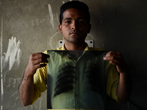 Indian tuberculosis patient Sonu Verma, 25, poses with his chest x-ray in Sonipat. The number of TB cases in India has been vastly underestimated, according to a new report from the World Health Organization.