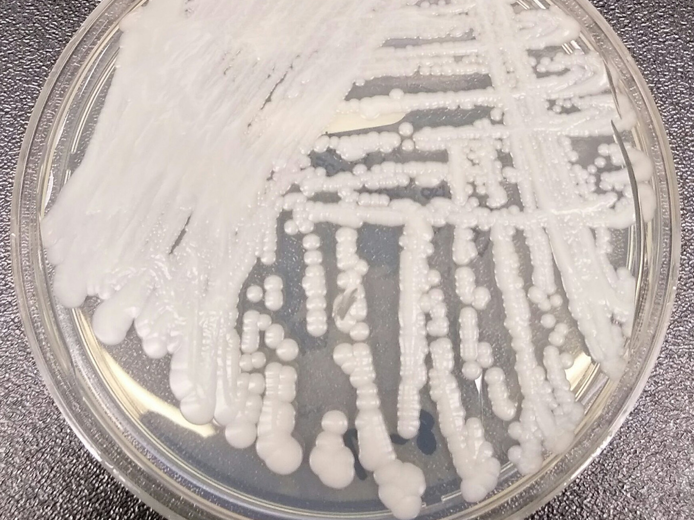 First Cases Of New, Infectious Fungus Reported In U.S.