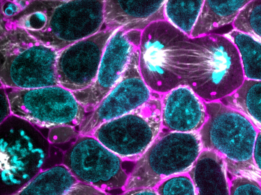 Allen Institute Release Glowing Human Stem Cells To Researchers ...