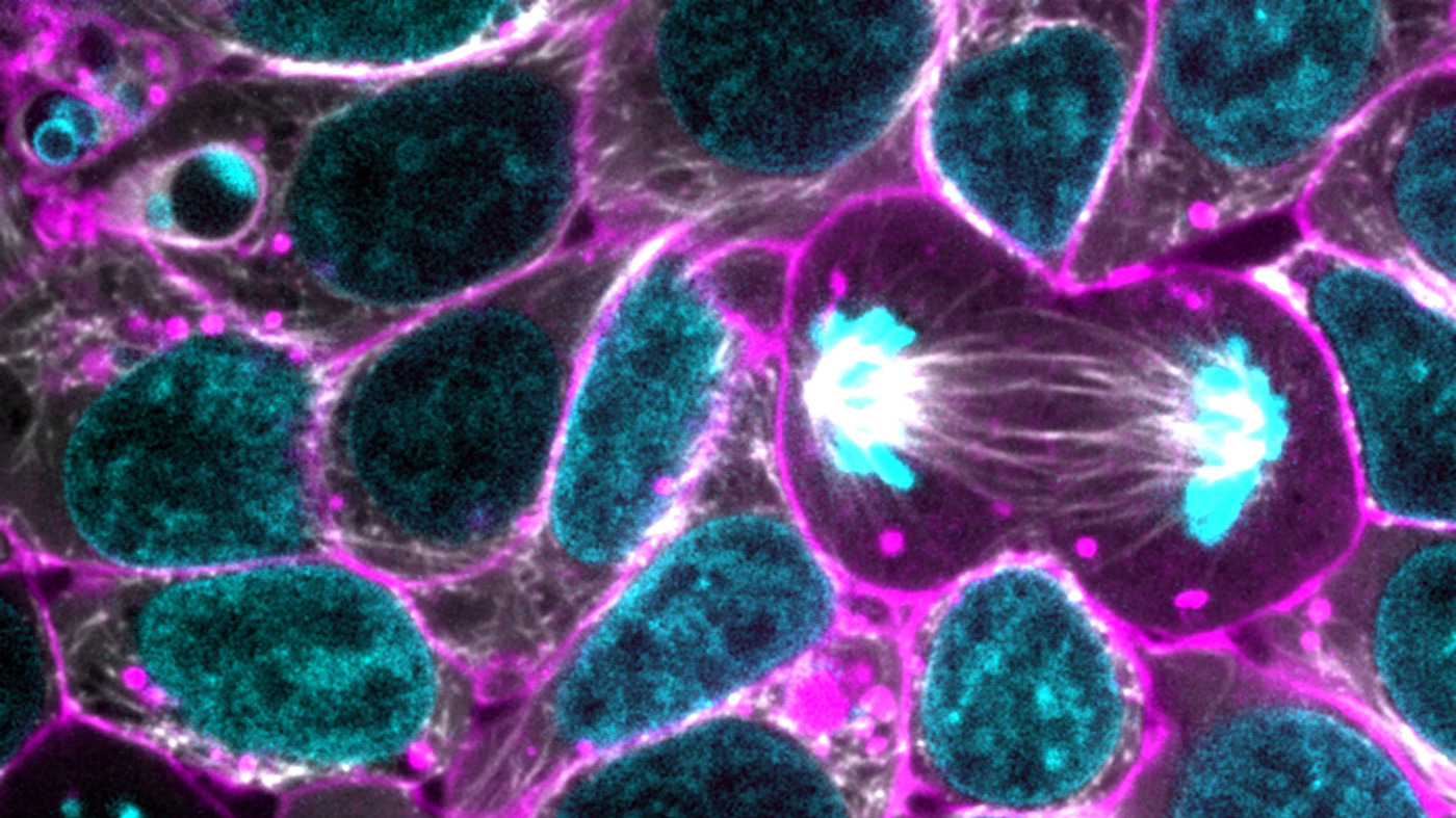 Car Talk Podcast >> Allen Institute Release Glowing Human Stem Cells To Researchers : Shots - Health News : NPR
