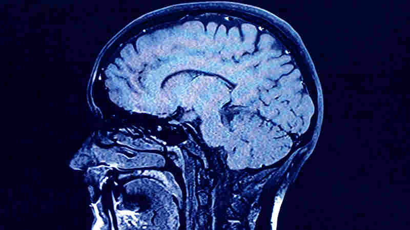 Brain, Mind, Body And The Disease Of Addiction