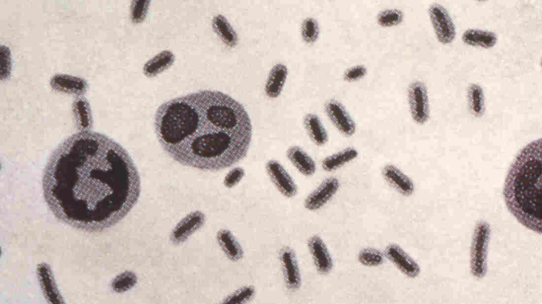 A stealthy superbug appears to be spreading in USA hospitals, study finds