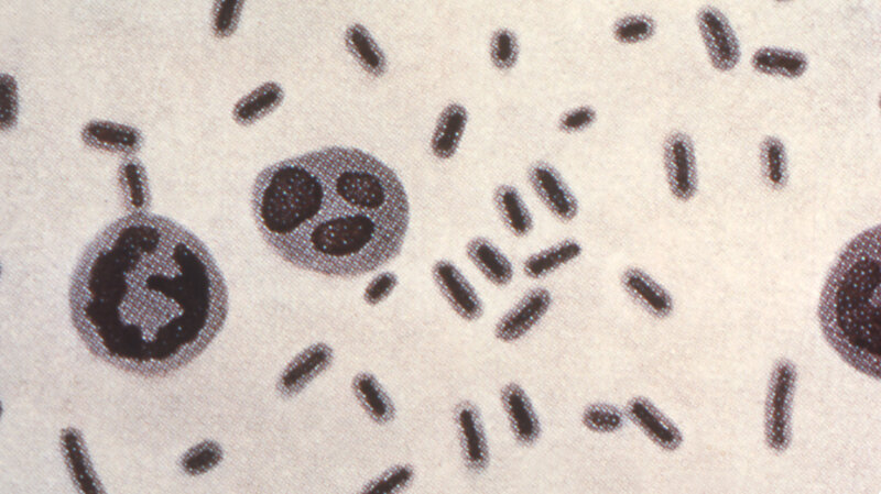 Superbug That Killed A Nevada Woman Resisted 26 Antibiotics