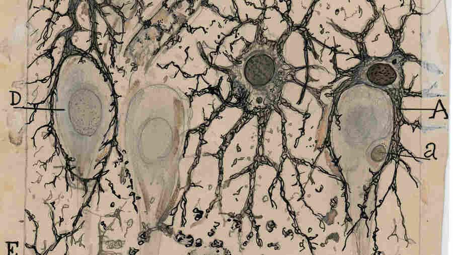 The Art Of The Brain, On Exhibit