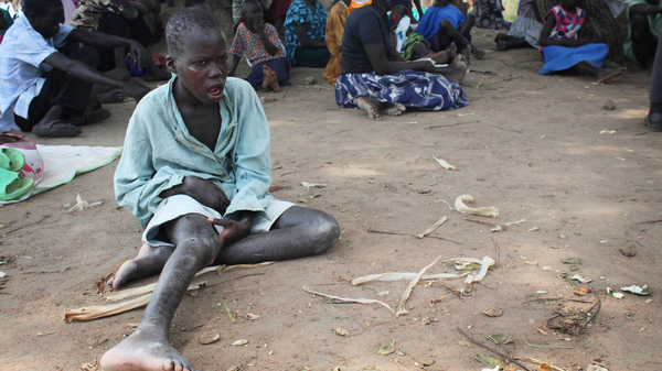 A child with nodding syndrome waits for treatment at an outreach site in Uganda