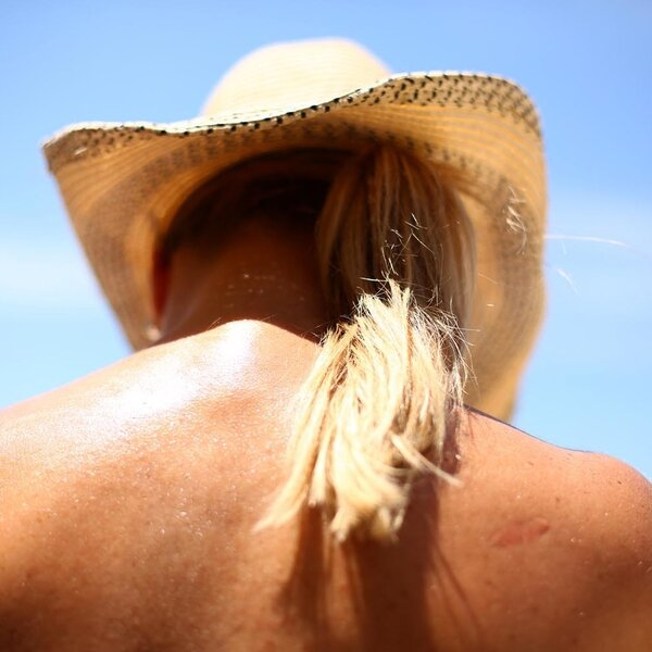 Some Melanoma Survivors Are Still Getting Too Much Sun Exposure