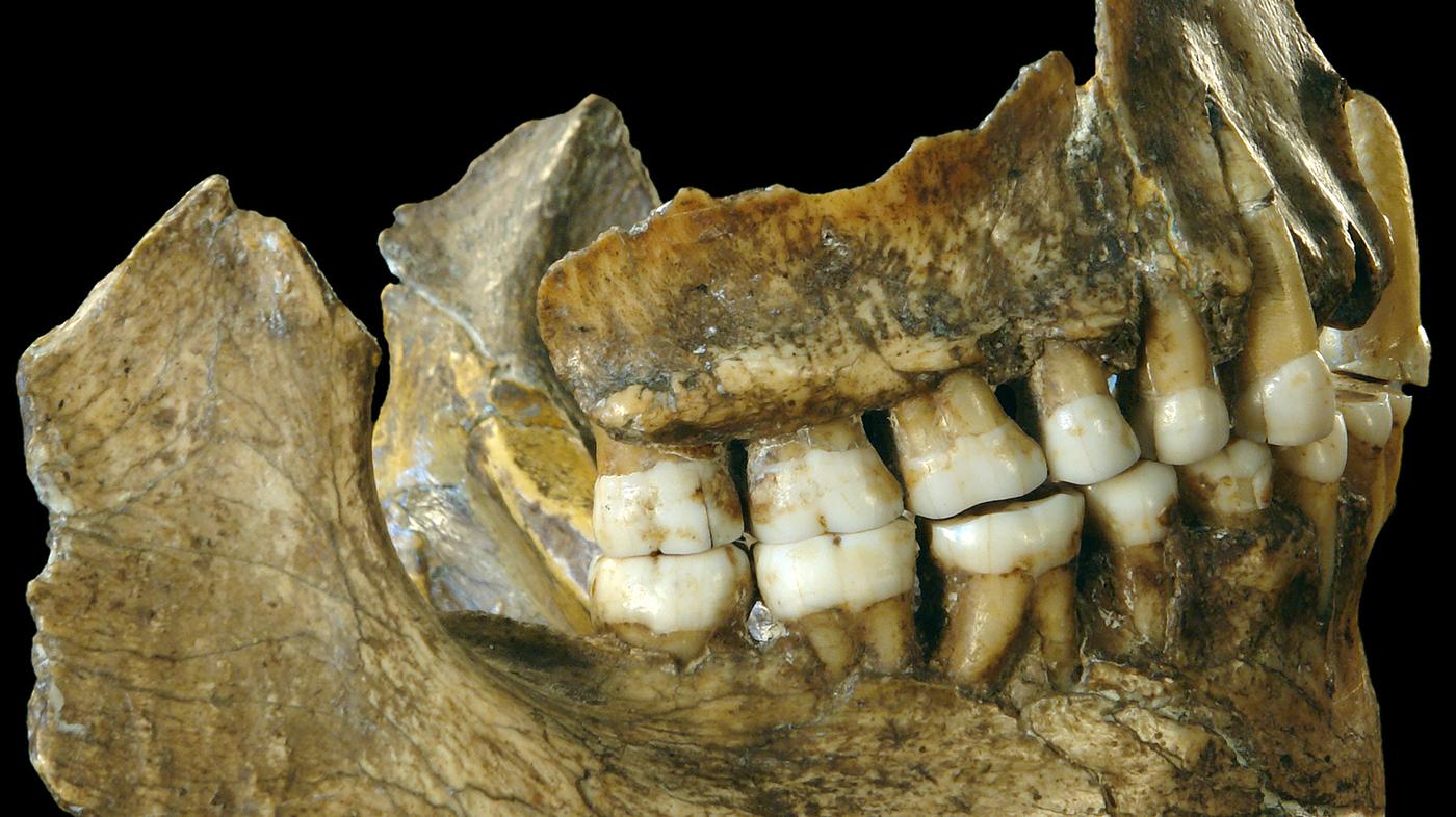 spy-ii-teeth_wide-df25613c250bdb730b01ab8f2c8ca657a47f5526.jpg?s=1400