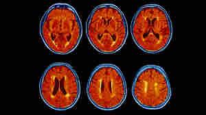 Cancer Drug That Might Slow Parkinson's, Alzheimer's Headed For Bigger Tests