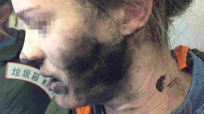 Woman's Headphones Caught Fire Midflight, Australian Authorities Say