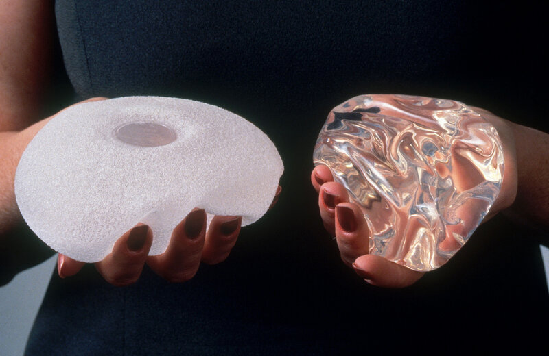 why breast implants