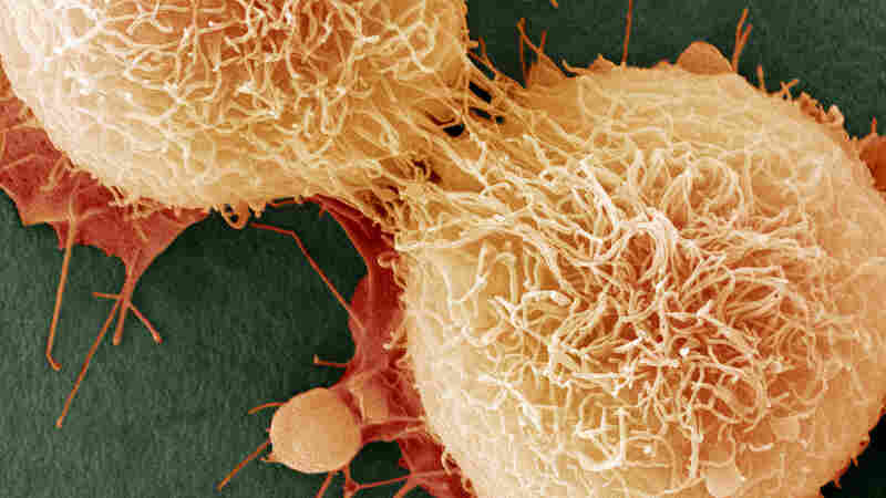 Cancer Is Partly Caused By Bad Luck, Study Finds