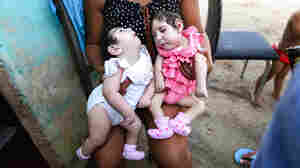 Why Didn't Zika Cause A Surge In Microcephaly In 2016?