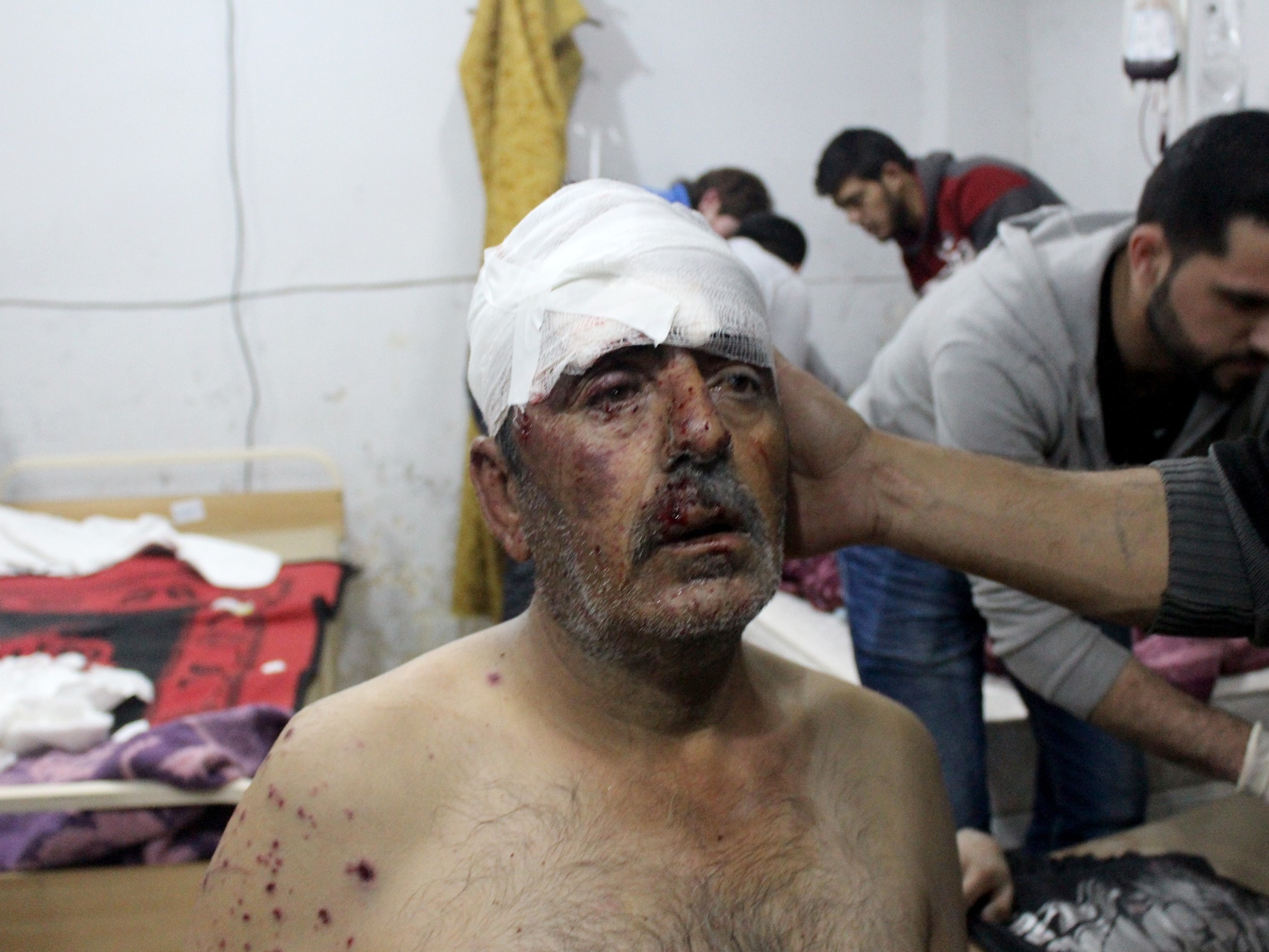 A wounded man receives treatment following airstrikes in Idlib province. (Abdulghani Arian/Anadolu Agency/Getty Images)