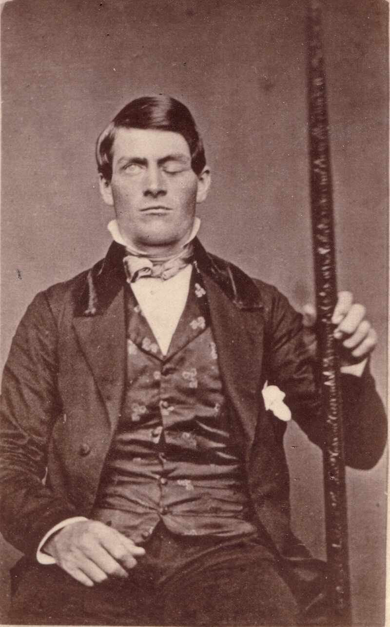 The Curious Case of Phineas Gage's Brain : Shots - Health