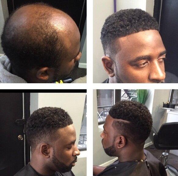 Man Weaves': A 'Game Changer' For Balding Men, Cash For $2 5