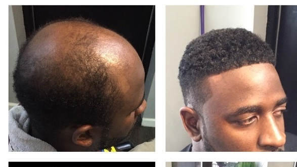 Man Weaves A Changer For Balding Men Cash 2 5 Billion Black Haircare Industry Npr