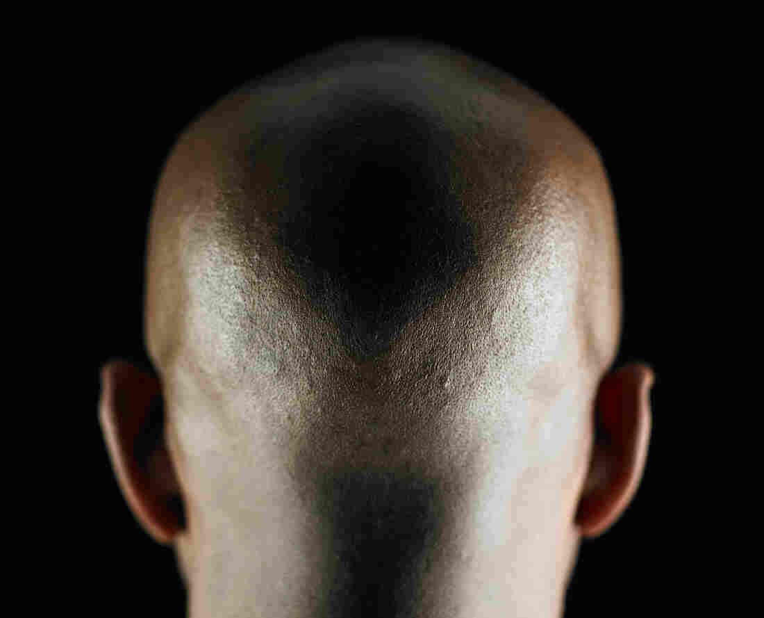 Bald man, rear view.