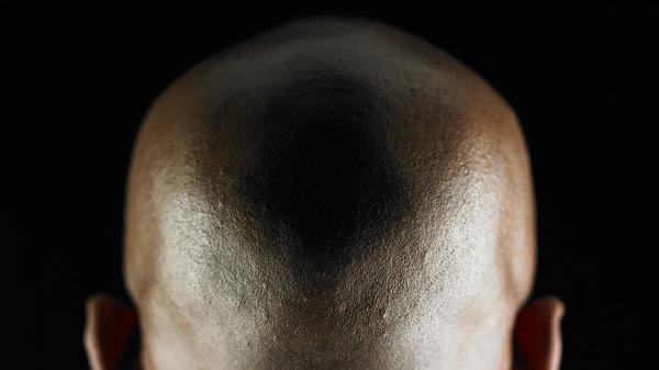 Bald man, rear view.