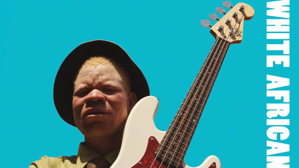 Hunted And Hated, People With Albinism Raise Their Voices In