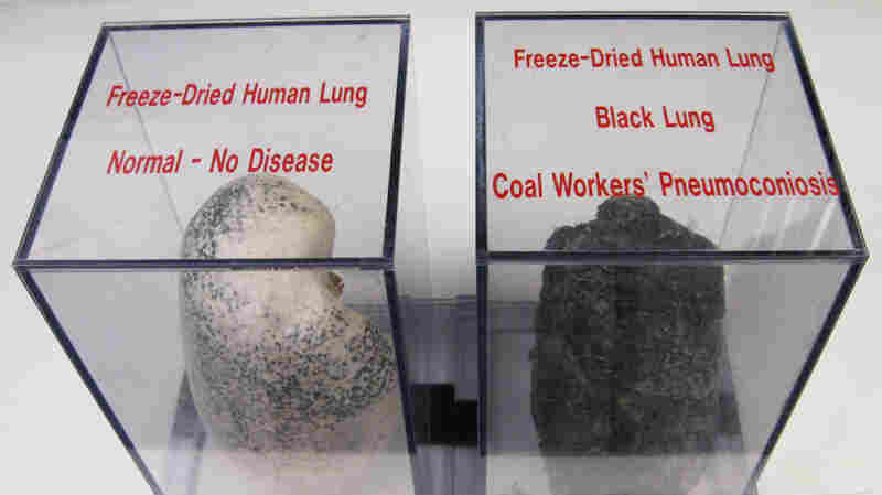 NPR Continues To Find Hundreds Of Cases Of Advanced Black Lung