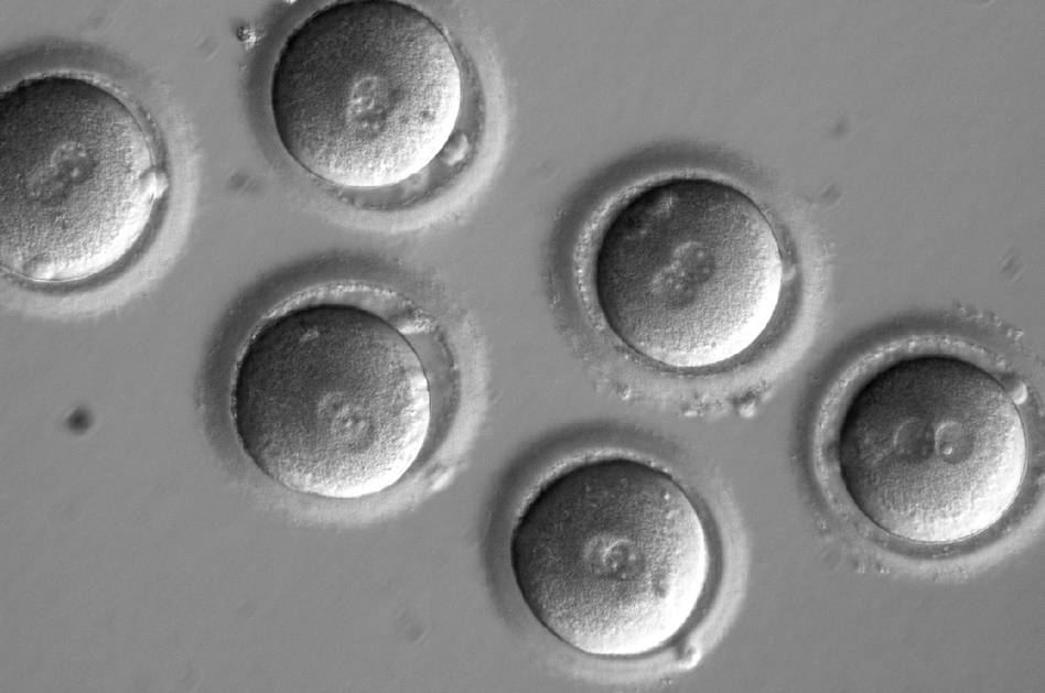 The first sign of successful in vitro fertilization, after co-injection of a gene-correcting enzyme and sperm from a donor with a genetic mutation known to cause hypertrophic cardiomyopathy. (Courtesy of OHSU)