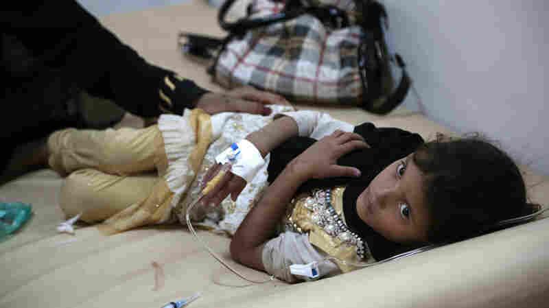 1 Million Malnourished Children At Risk Of Cholera In Yemen