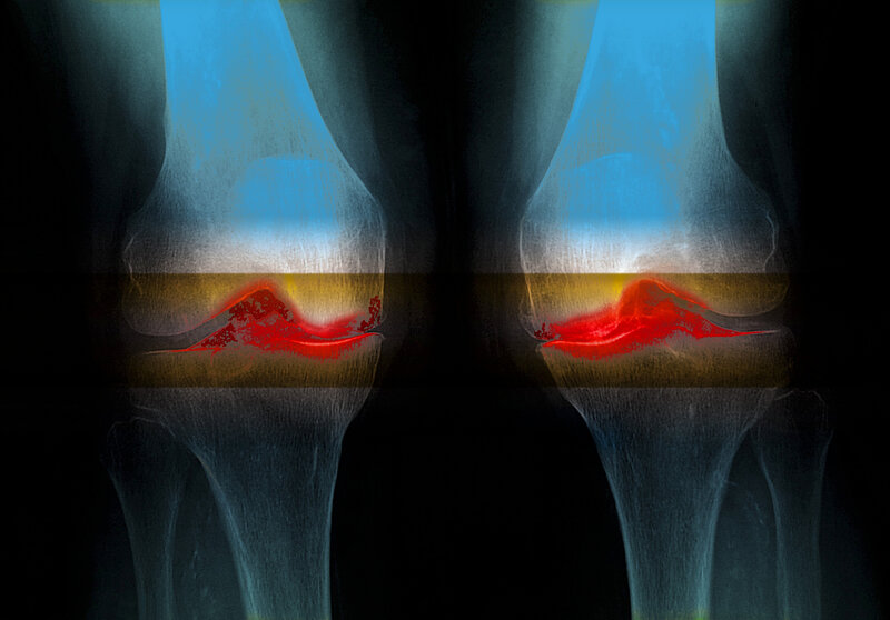 Osteoarthritis Is Much More Common Now Than In Ancient Knees Study