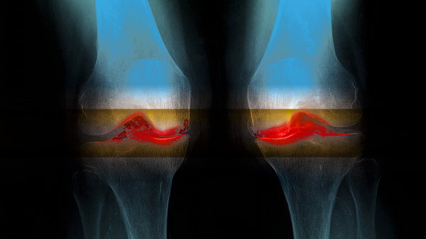 6,000-Year-Old Knee Joints Suggest Osteoarthritis Isn't Just Wear And Tear