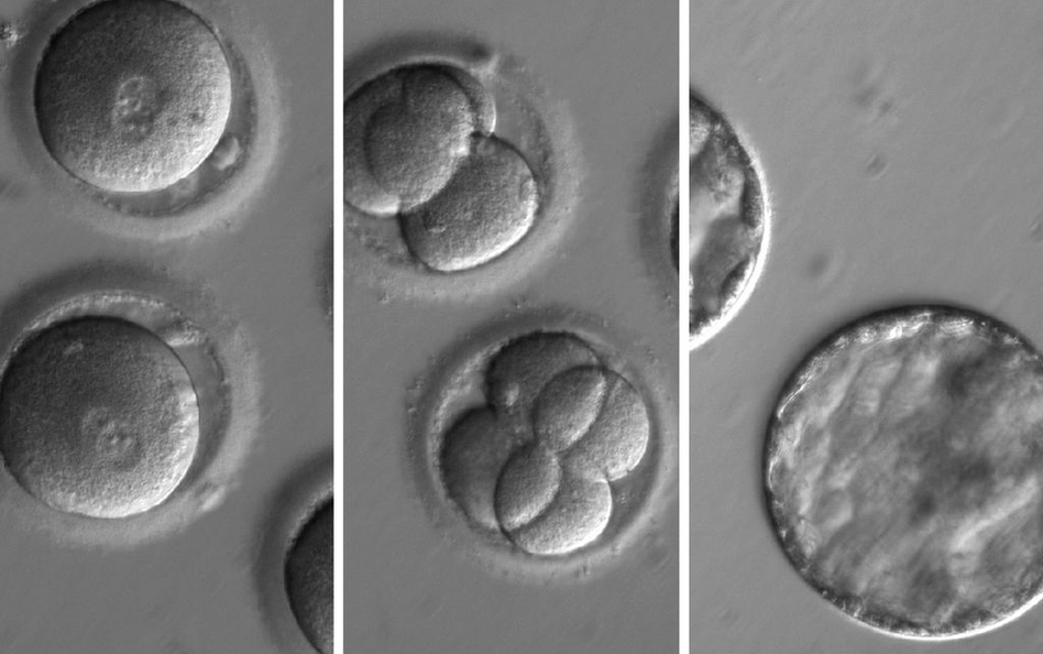 This sequence of images shows the development of embryos formed after eggs were injected with both CRISPR, a gene-editing tool, and sperm from a donor with a genetic mutation known to cause cardiomyopathy. (OHSU)