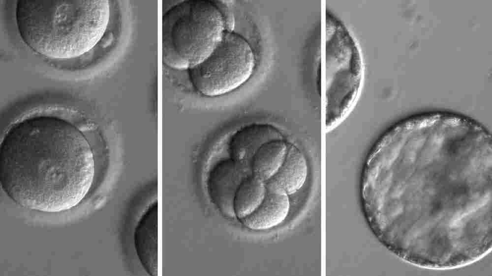 A First Look: Inside The Lab Where Scientists Are Editing DNA In Human Embryos