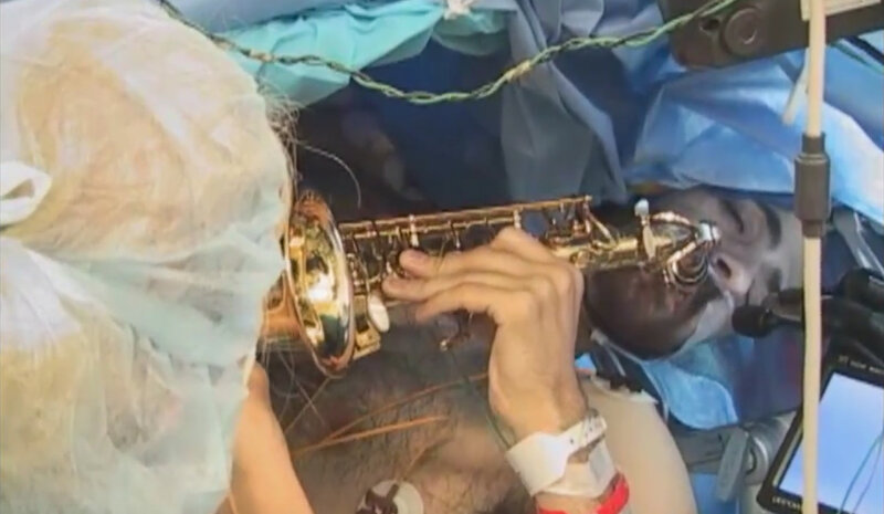 Brain Mapping Guides Surgeons In Removal Of Musician's Tumor