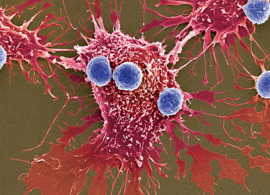 Scientists have created a treatment in which genetically modified T cells, shown in blue, can attack cancer cells, shown in red. (Steve Gschmeissner/Science Source)