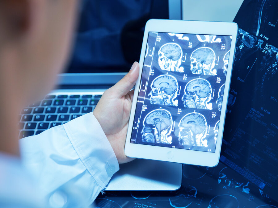 Scanning The Future Radiologists See Their Jobs At Risk  All Tech