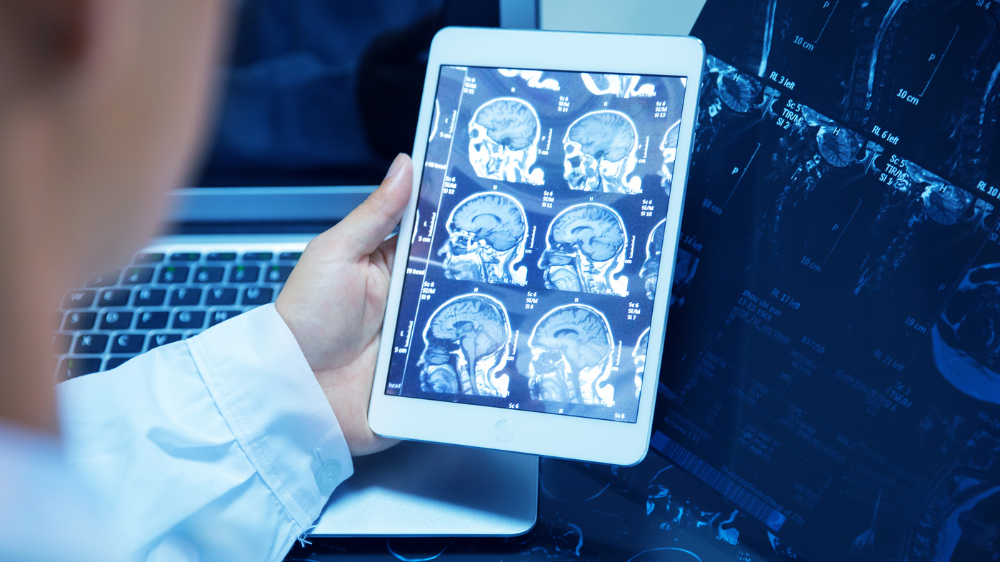 Scanning The Future Radiologists See Their Jobs At Risk