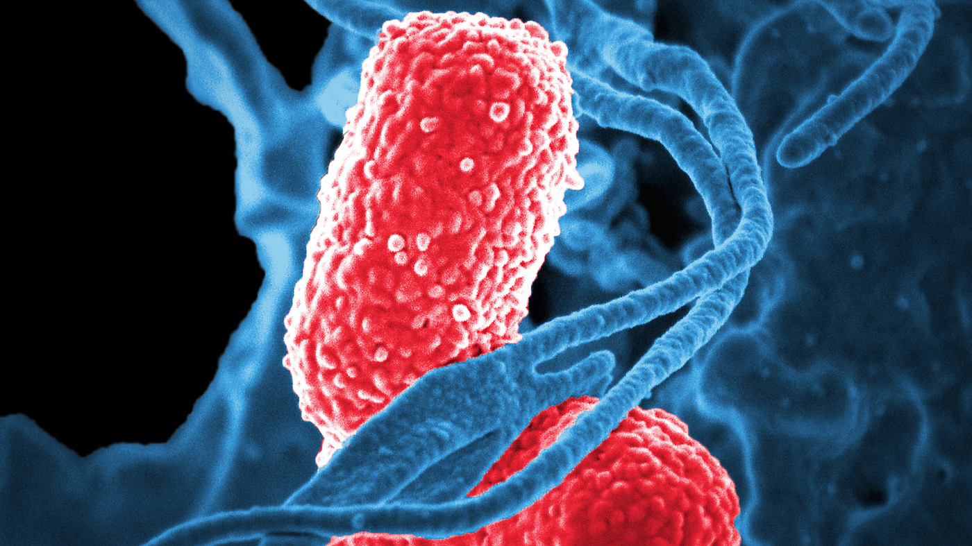 Triple Threat: New Pneumonia Is Drug-Resistant, Deadly And Contagious