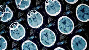 Can Consciousness In Brain-Injured Patients Be Restored?