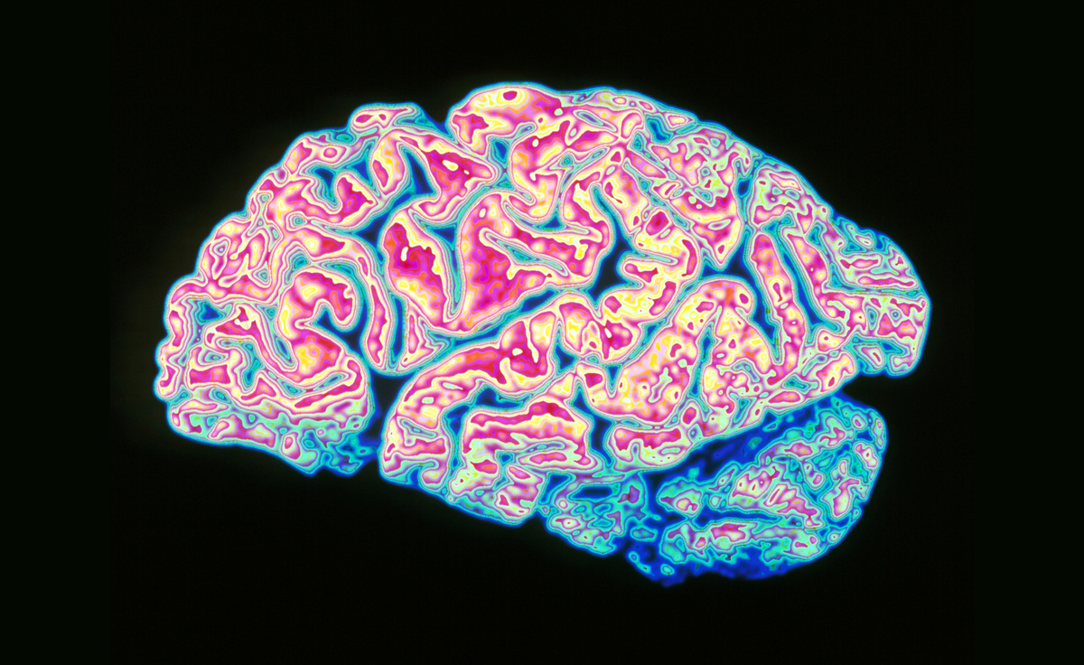 Human Brain Has A Direct Link To The Immune System After ...