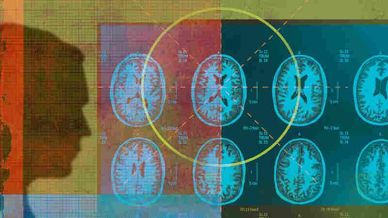 Studies Skewed By Focus On Well-Off, Educated Brains
