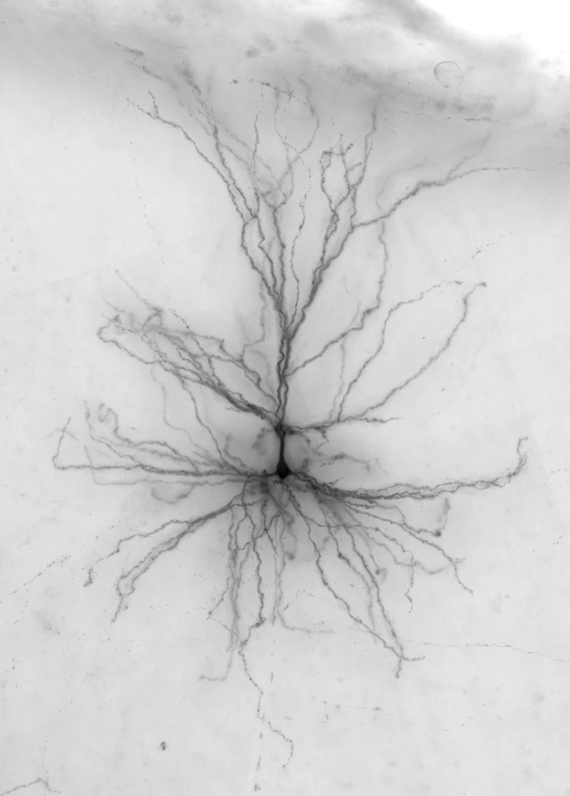 Scientists And Surgeons Team Up To Create Virtual Human Brain Cells