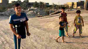 In Fallujah, A Young Amputee Dreams Of Returning To The U.S.