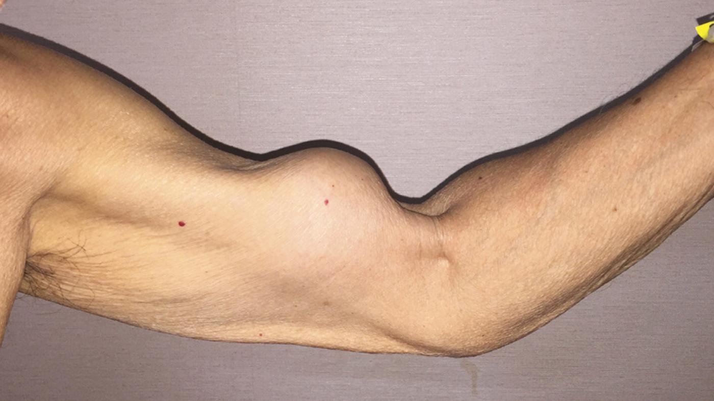 Popeye Biceps Injury Can Be Eye Popping Shots Health News Npr