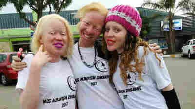 'Miss Albinism' Beauty Pageant Delayed Due To Tensions In Zimbabwe